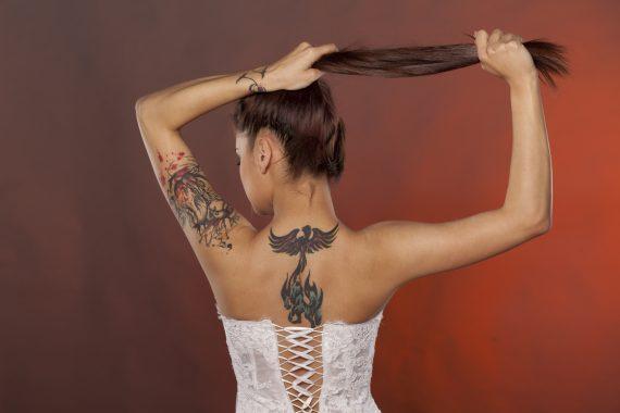 Usunięcie niechcianego tatuażu
