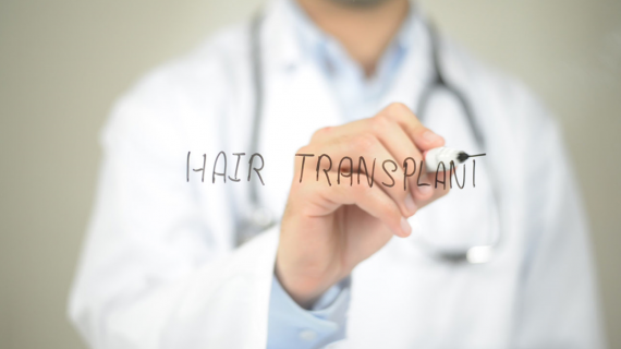 Lekarz pisze hair transplant