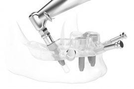 Szablony chirurgiczne - szczęka i zęby