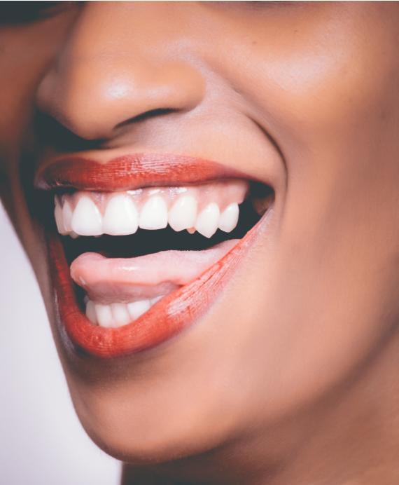 Uśmiechnięta kobieta z implantami zębów