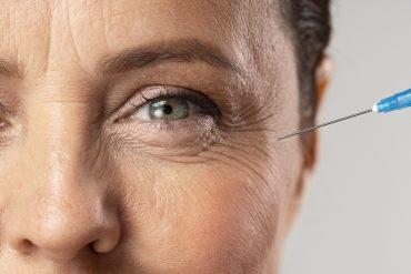 kobieta zmarszczki w okolicy oczu